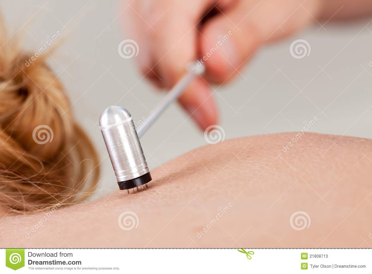 acupuncher treatment