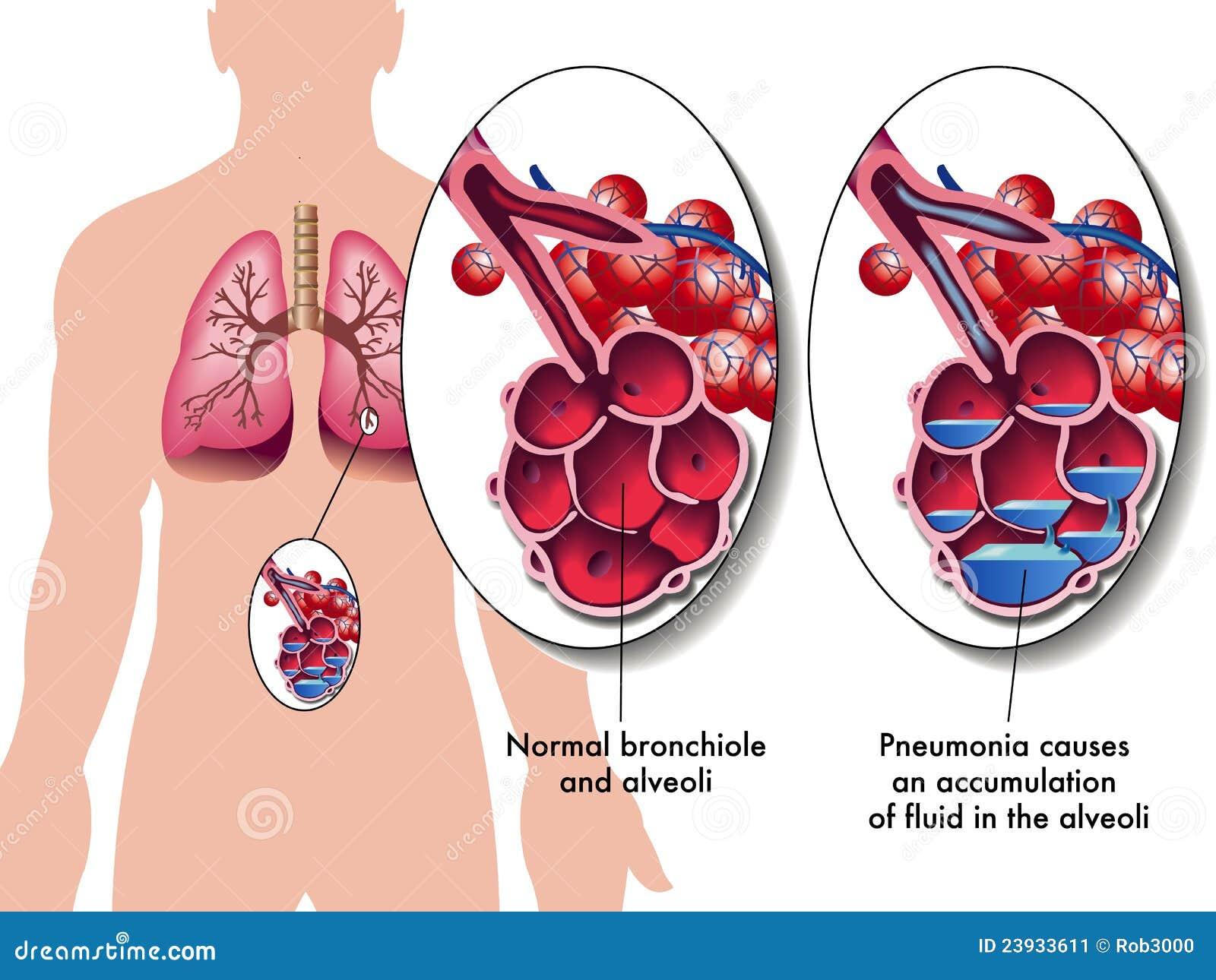 Pneumonia Stock Image - Image: 23933611