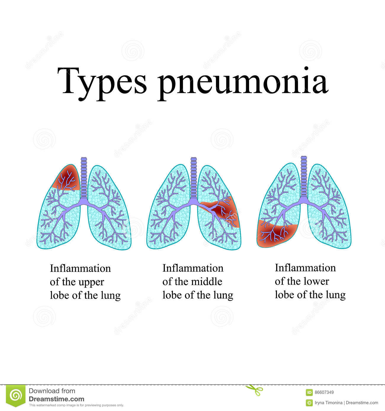 Pneumonia The Anatomical Structure Of The Human Lung Type Of