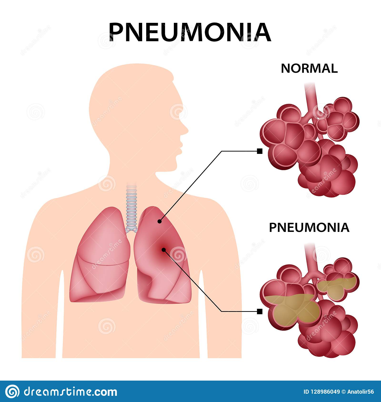 Pneumonia concept background, realistic style