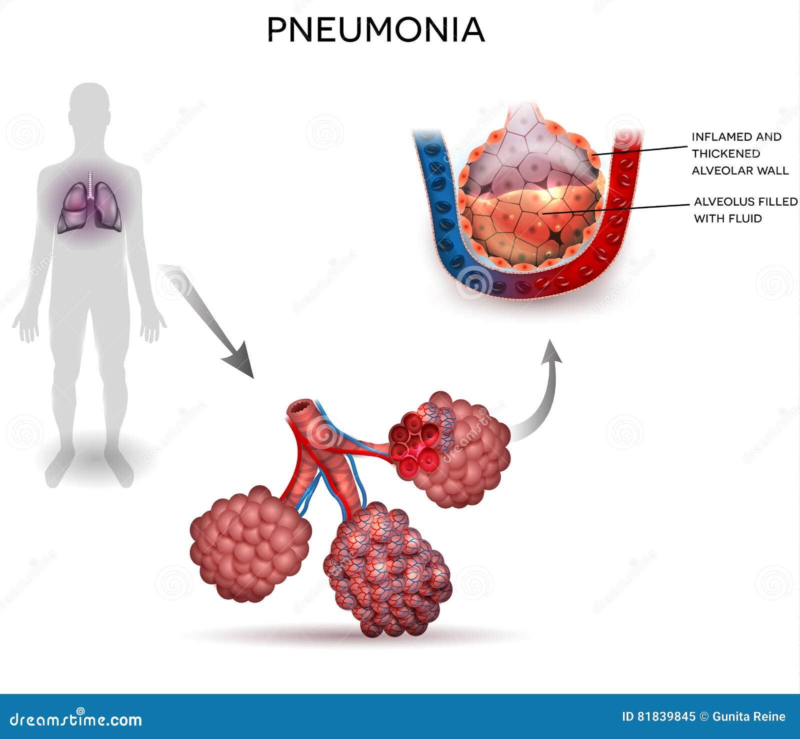 Pneumonia Cartoons  Illustrations   Vector Stock Images
