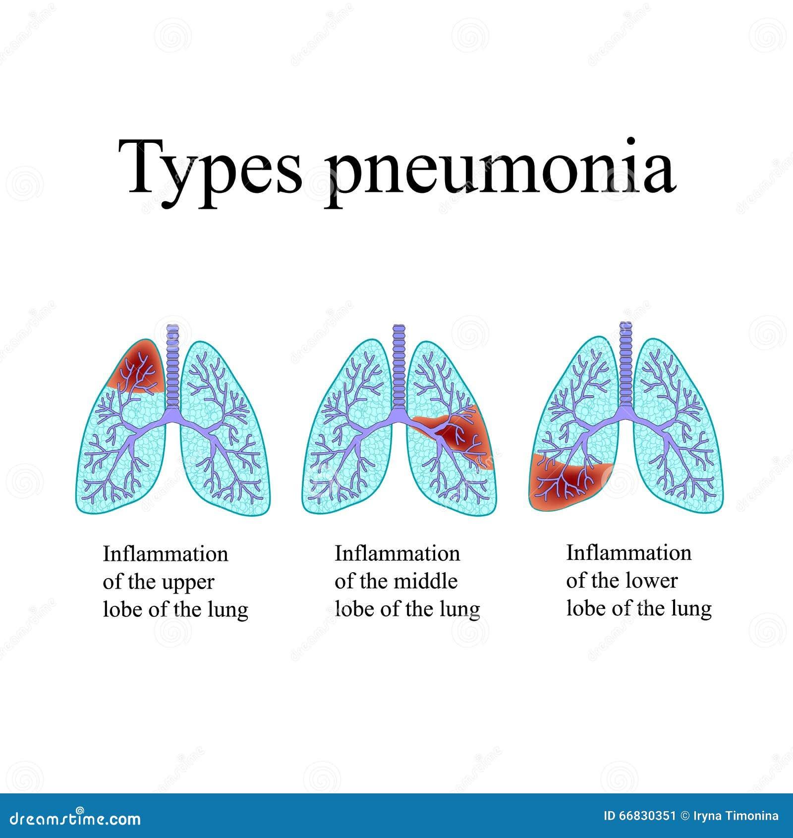Pneumonie Die Anatomische Struktur Der Menschlichen Lunge Art Der ...