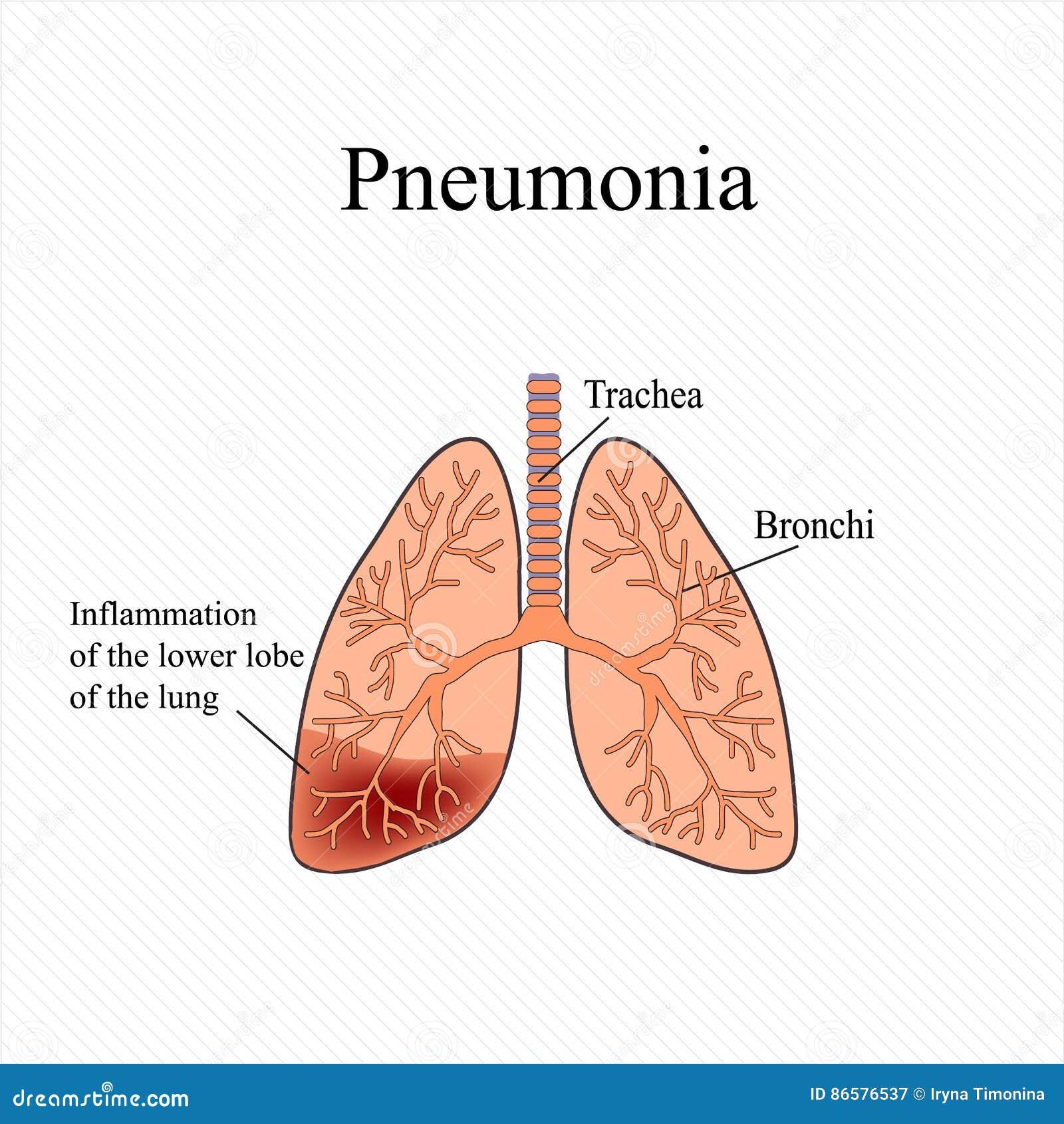 Pneumonie Die Anatomische Struktur Der Menschlichen Lunge Entzündung ...