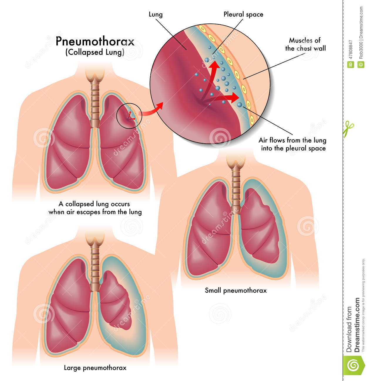 Pneumothorax stock vector. Illustration of pleura, breathing - 47808847