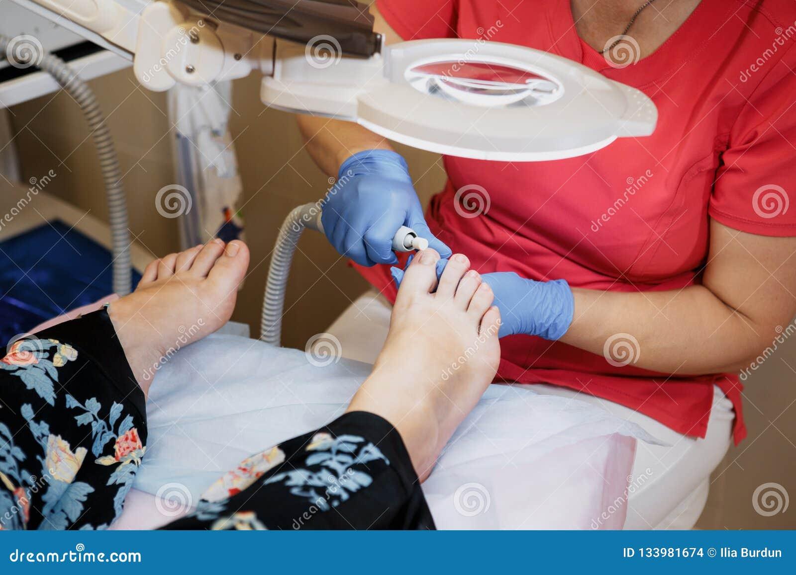 Podology traktowanie Podiatrist częstowania toenail grzyb Lekarka usuwa kalus, kukurudz i fund wrośniętego gwóźdź, narzędzia