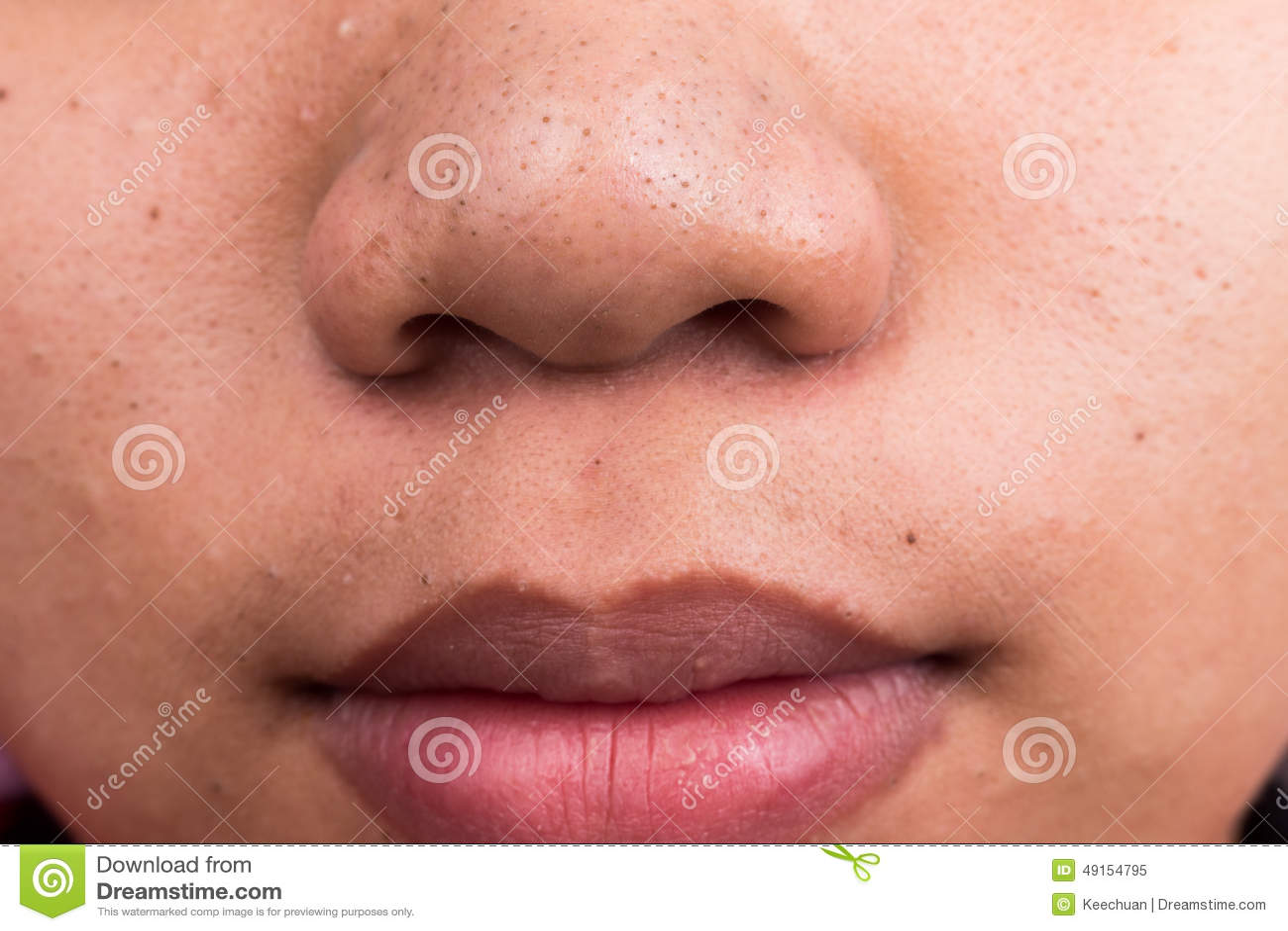 points noirs de bouton sur le nez et les l vres photo stock image 49154795. Black Bedroom Furniture Sets. Home Design Ideas