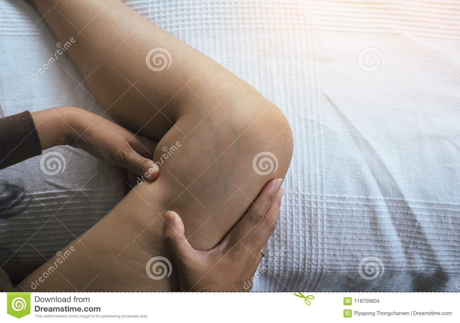Pojęcie skóry zdrowie, zbliżenie, Żylakowate żyły na kobiecie iść na piechotę