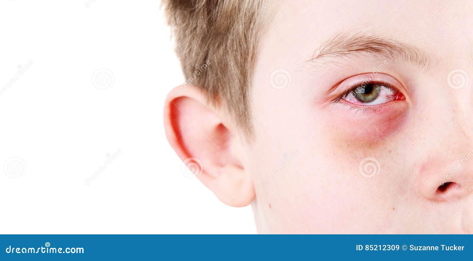 Pojke med ett sårat öga