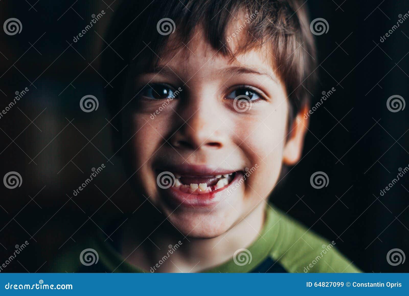 Pojke som missa le tänder