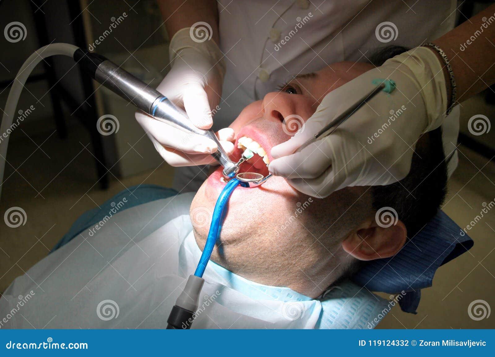 Polissage dentaire de dent Dents nettoyant, hygiène dentaire Le dentiste est polissage des dents patientes avec la brosse dentair