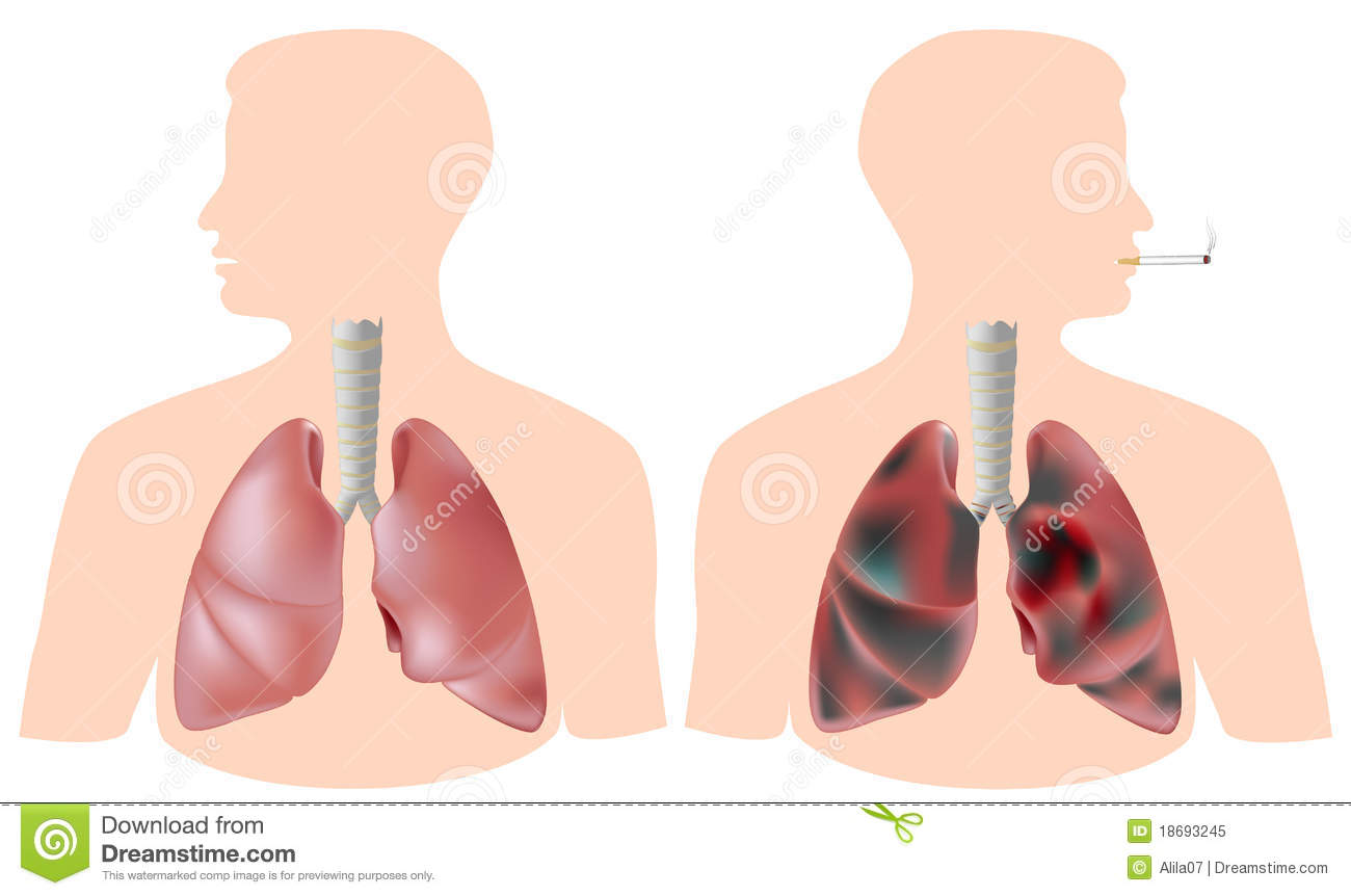 Polmone Del Fum... Lungs After Smoking Clip Art