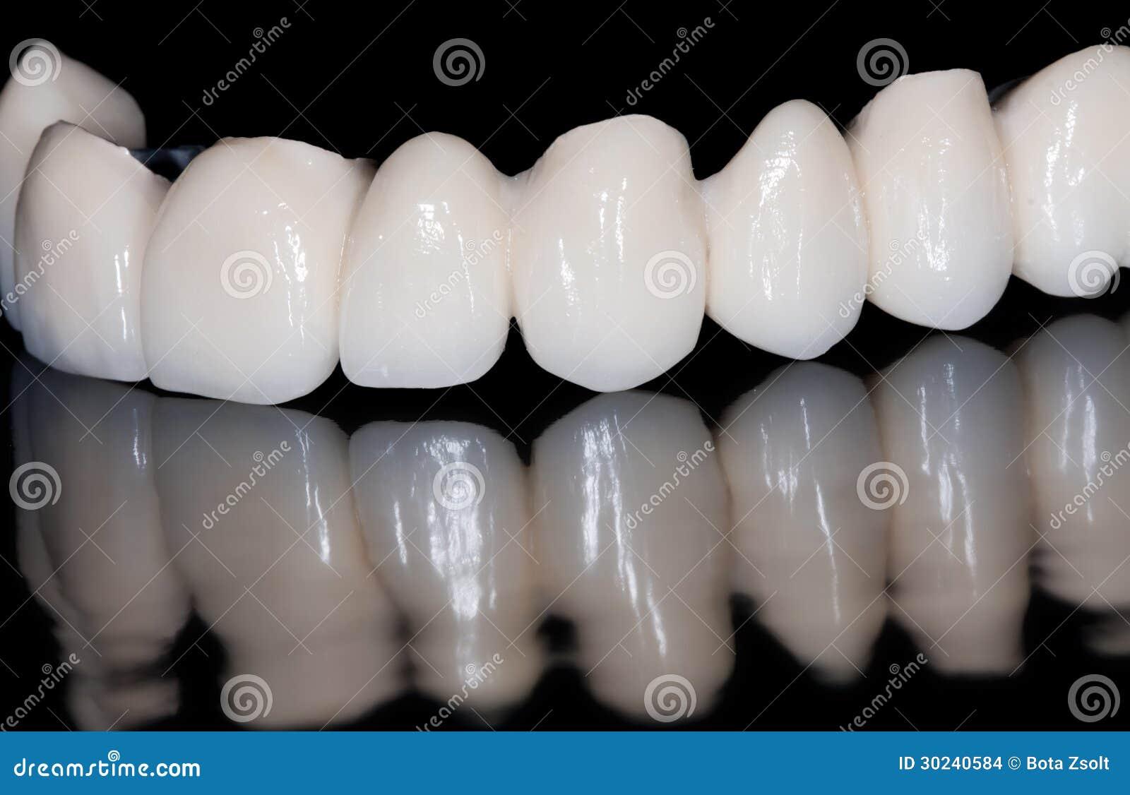Pont dentaire