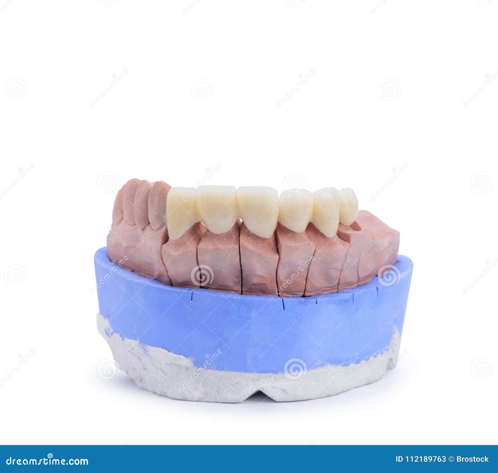 A ponte e a coroa dentais altamente estéticas toda cerâmicas na gipsita modelam de labotary