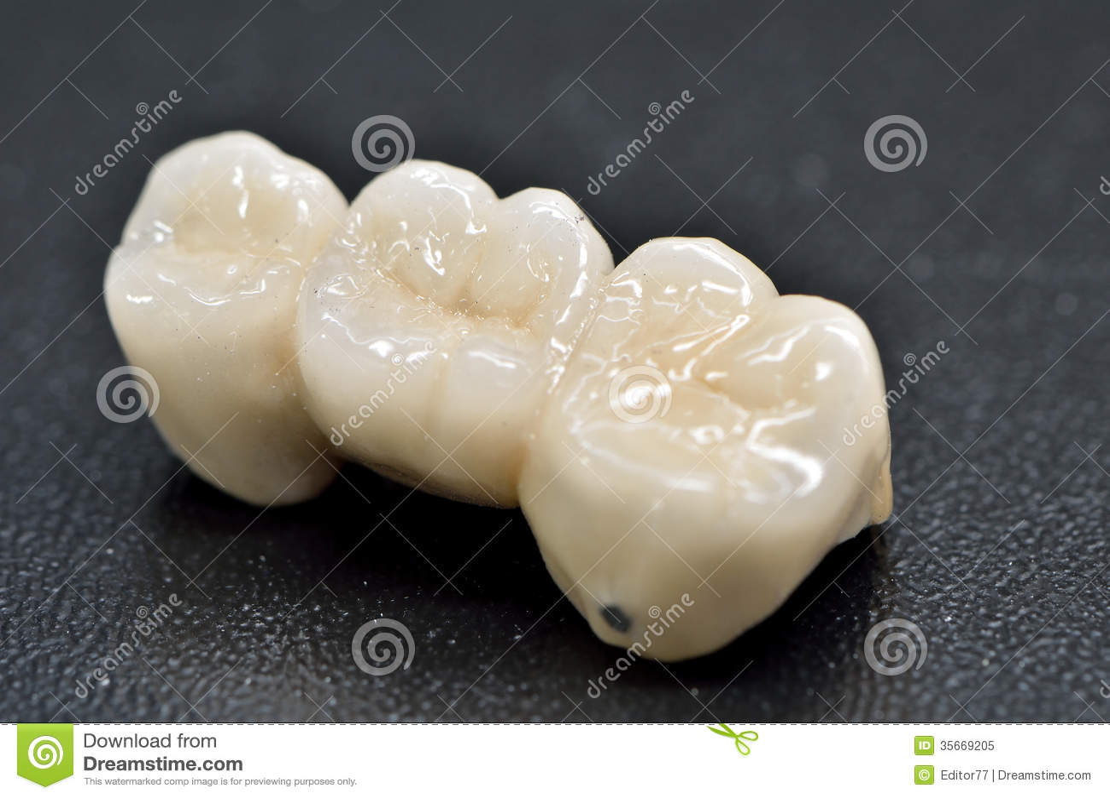 Porcelain Dental Crown Royalty Free Stock Photo Image