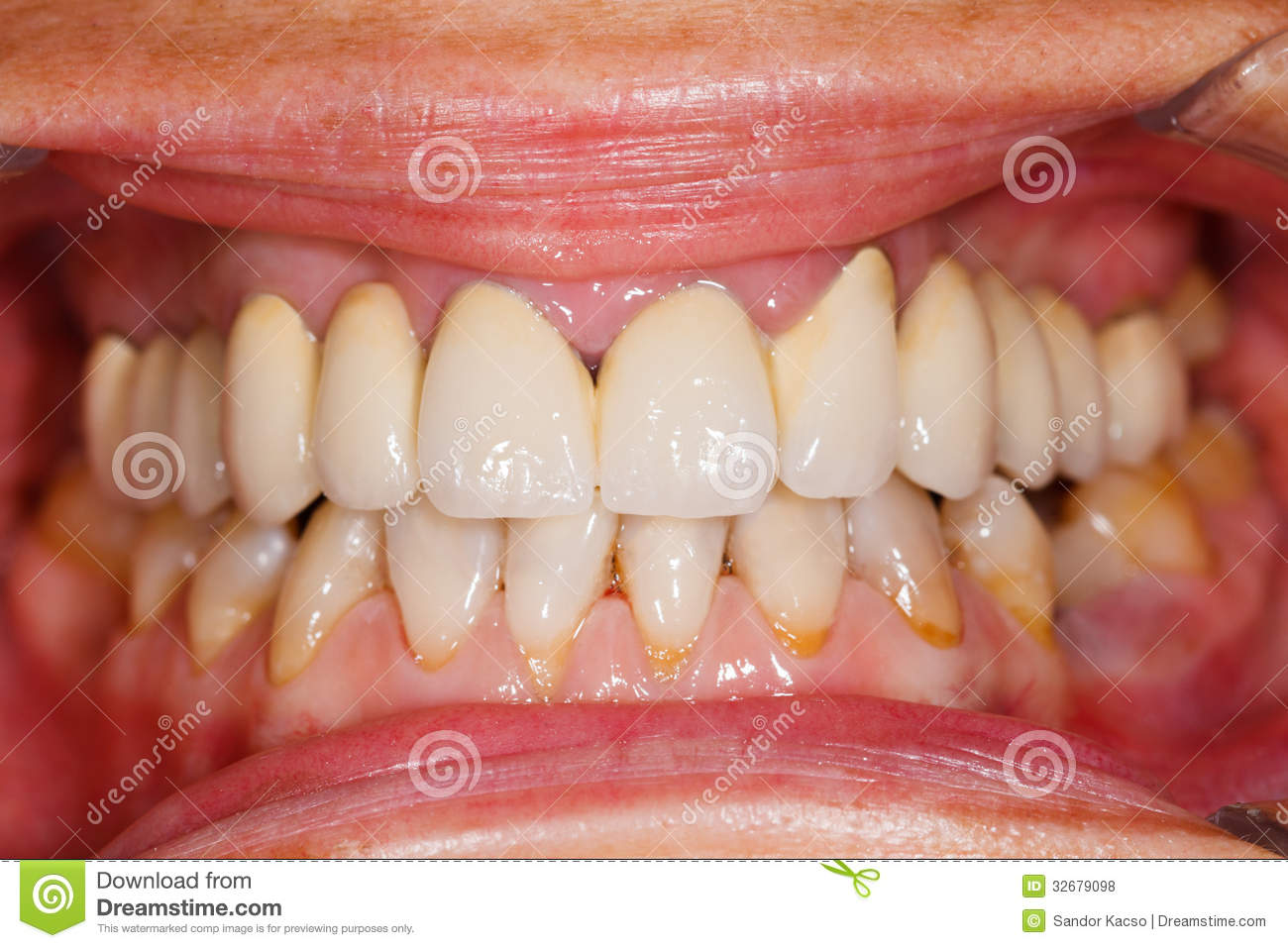 Porcelain Teeth In Human Mouth Stock Image Image Of Human Up