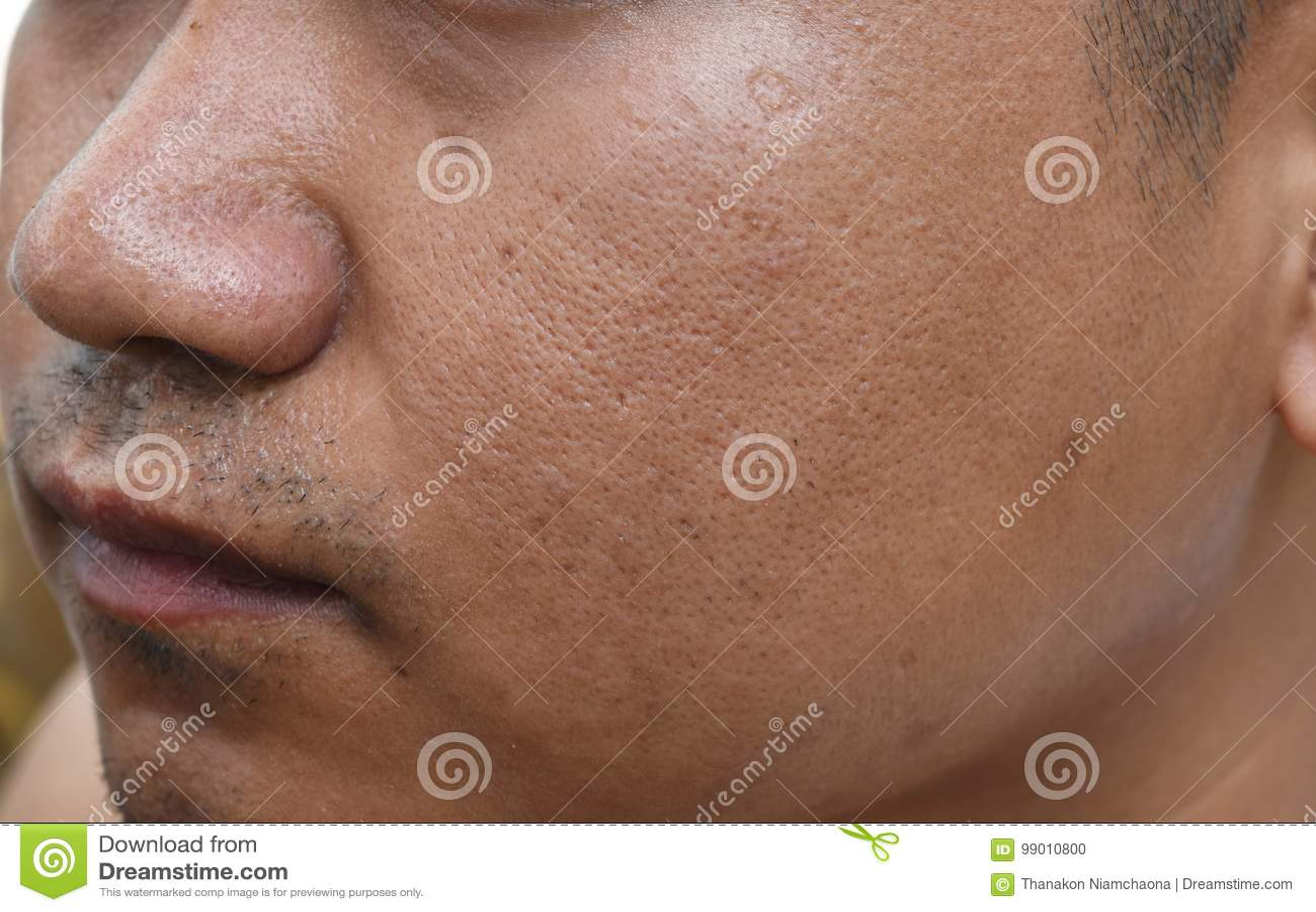 Pores i wazeliniarski na nawierzchniowej młodej azjatykciej mężczyzna twarzy skórze no biorą opieki przez długi czas