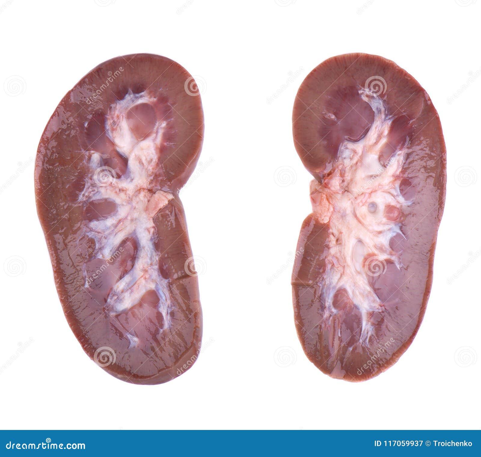 Pork Kidney Raw Isolated On White Background Closeup Pig Kidney