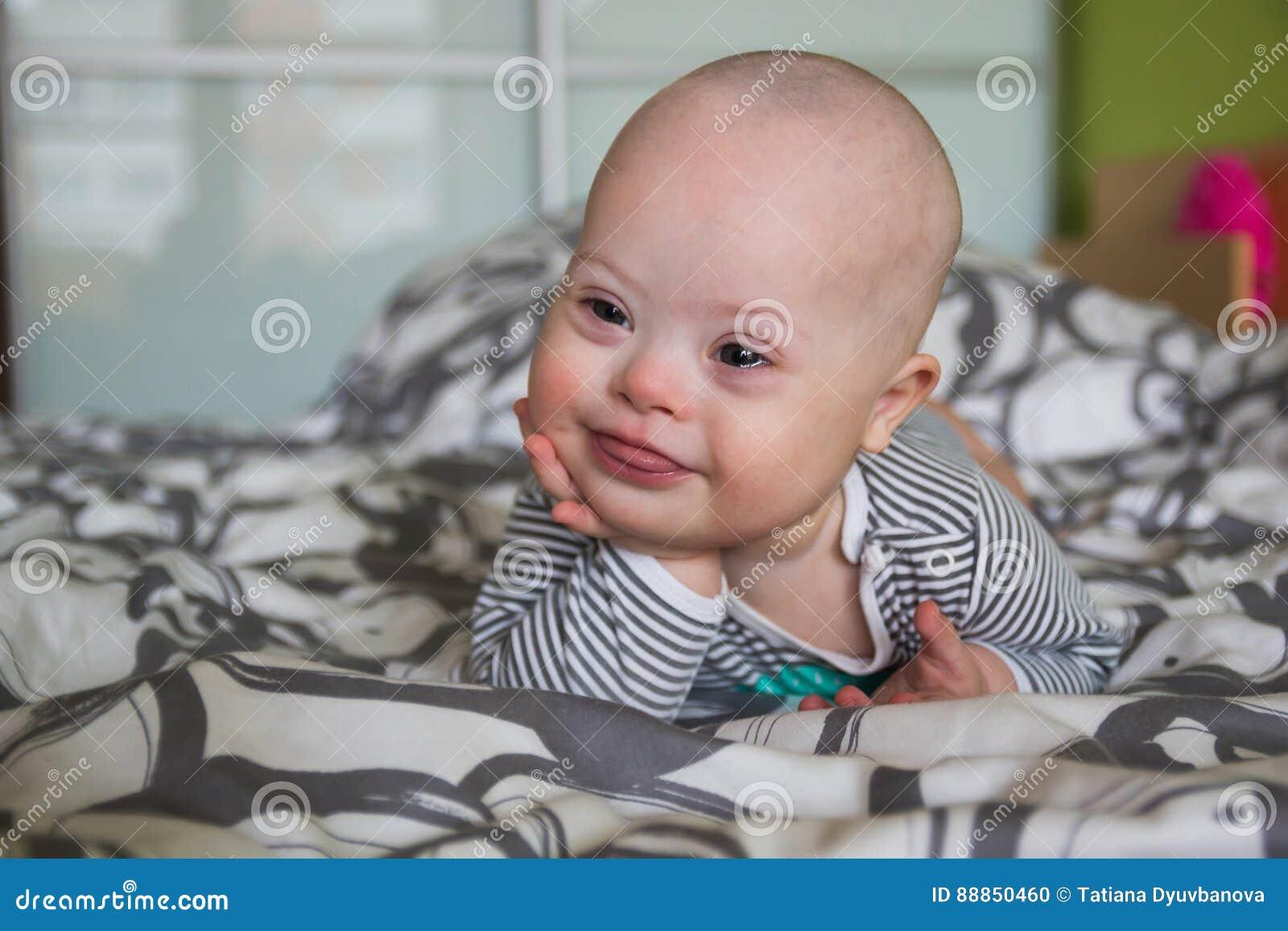 Porträt Des Netten Babys Mit Down Syndrom Stockfoto Bild Von
