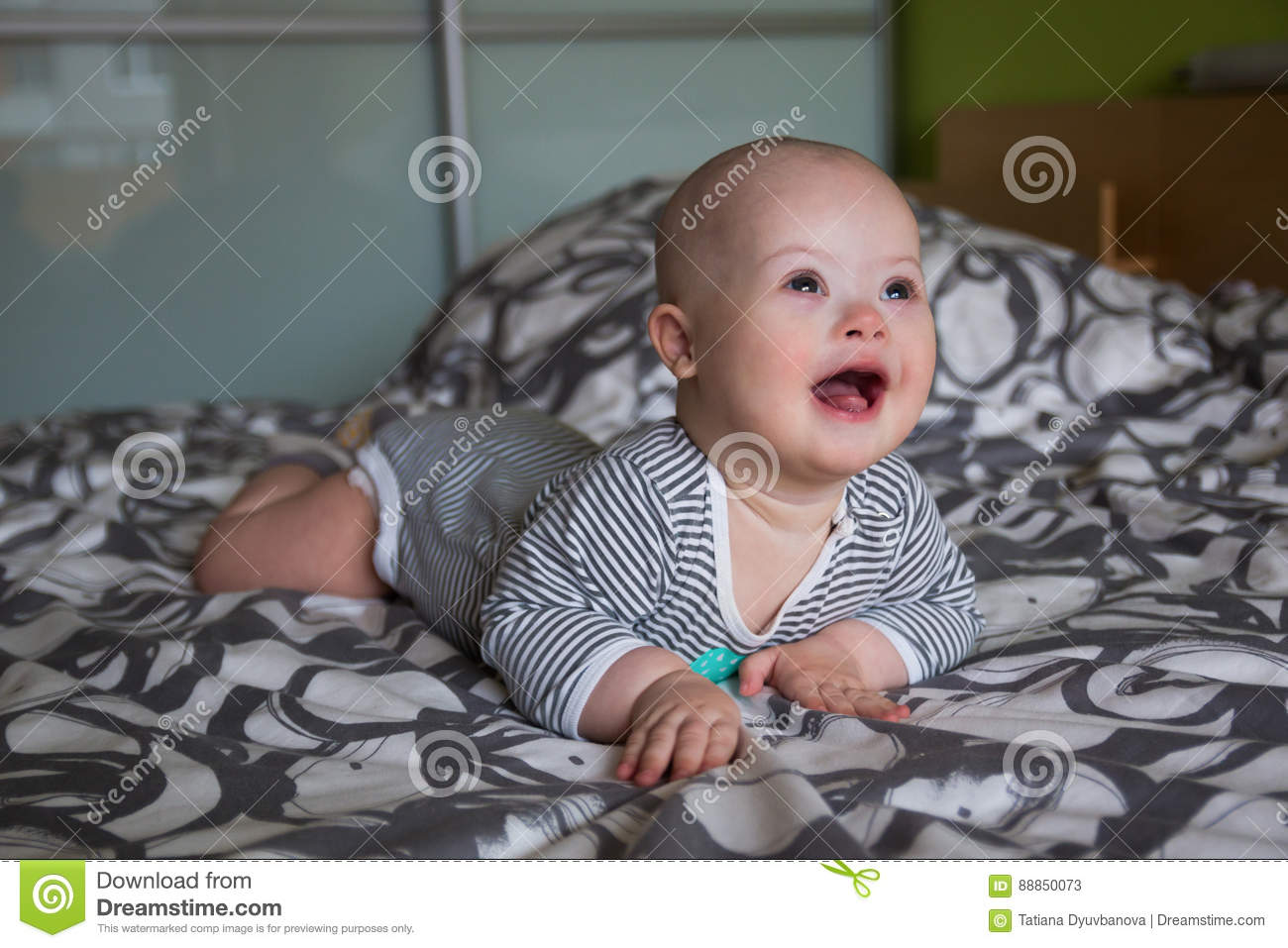 Portrait Of Cute Baby Boy With Down Syndrome Stock Image