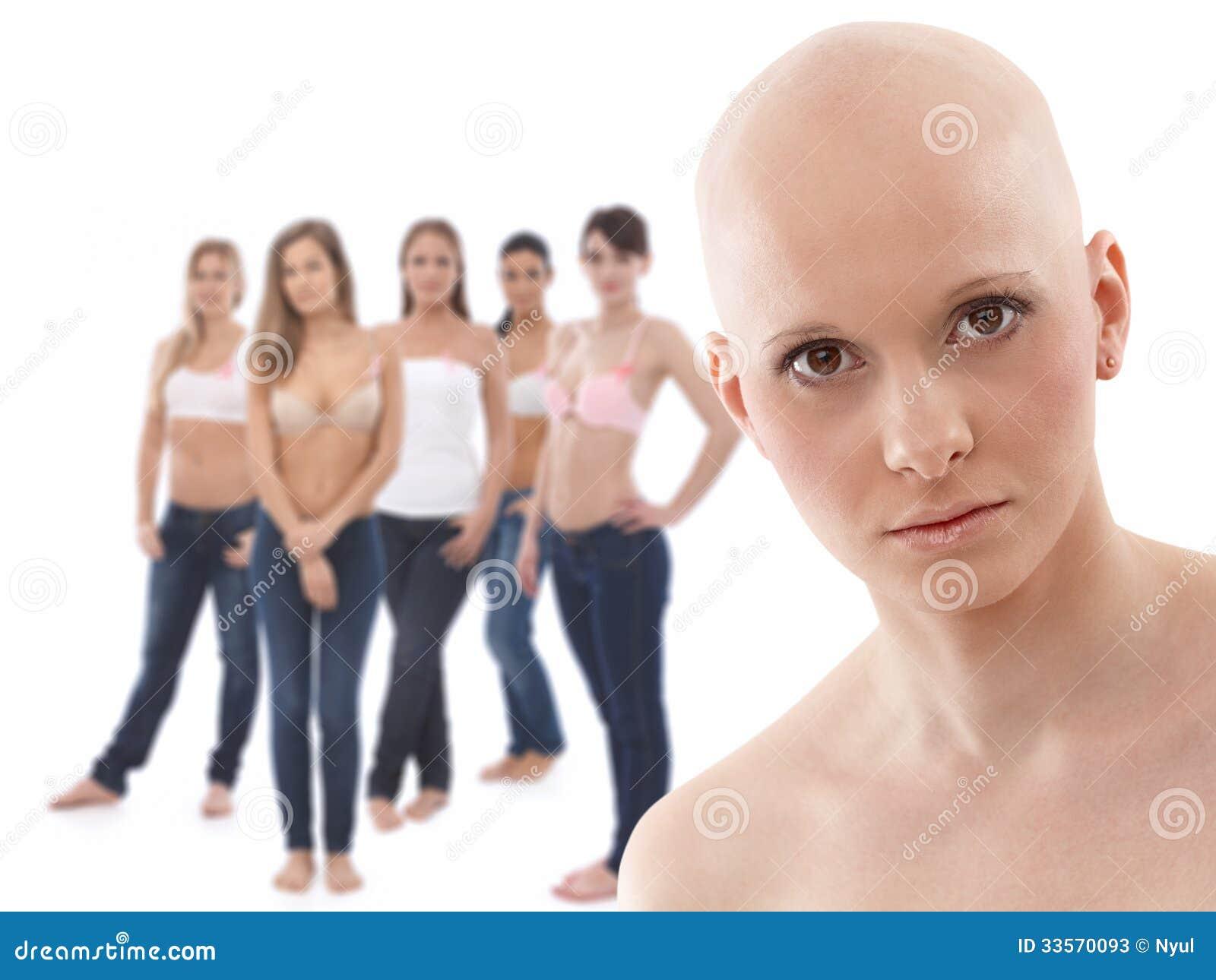 Les jeunes patients atteints de cancer du sein