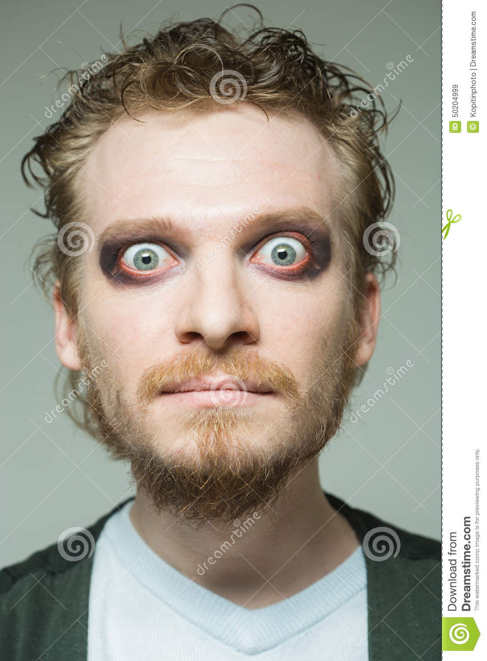 Portrait of a man with bulging eyes.