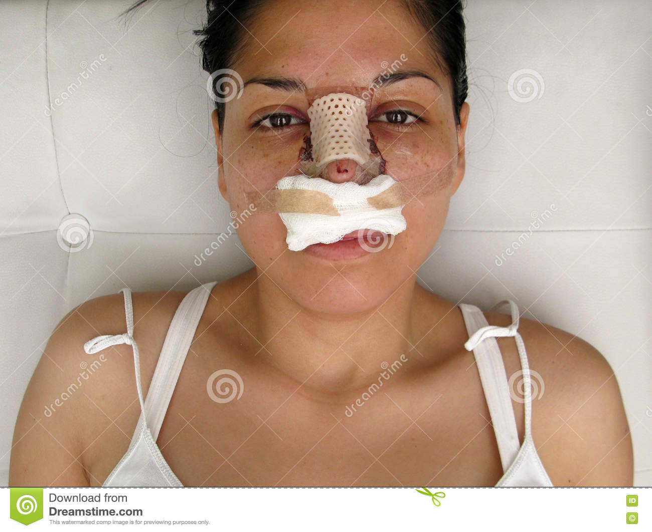 Portrait Of A Woman With Her Nose Heavily Bandaged  Stock Photo