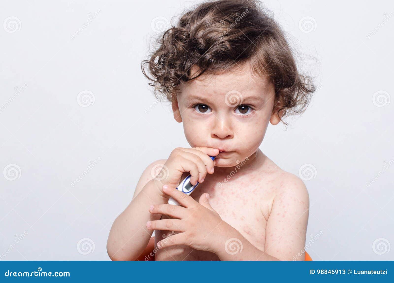 Portret van een leuke zieke babyjongen met koorts die een