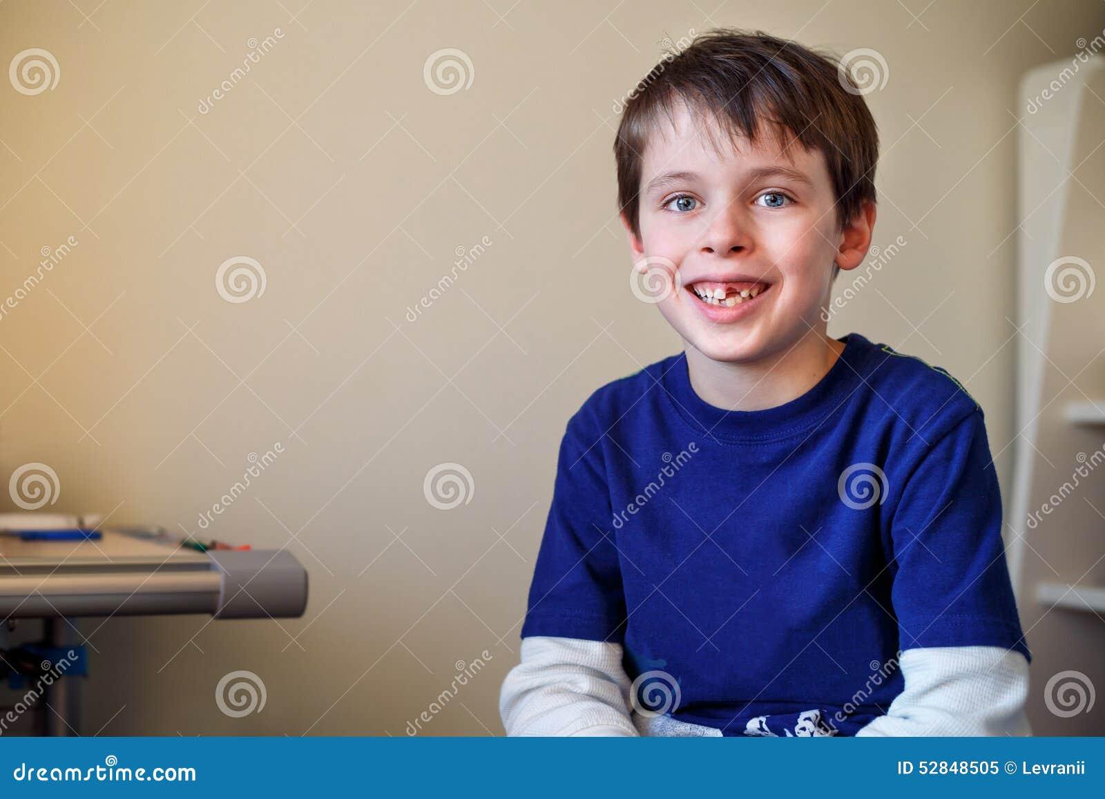 Portret van weinig jongen die zijn melktand verloor