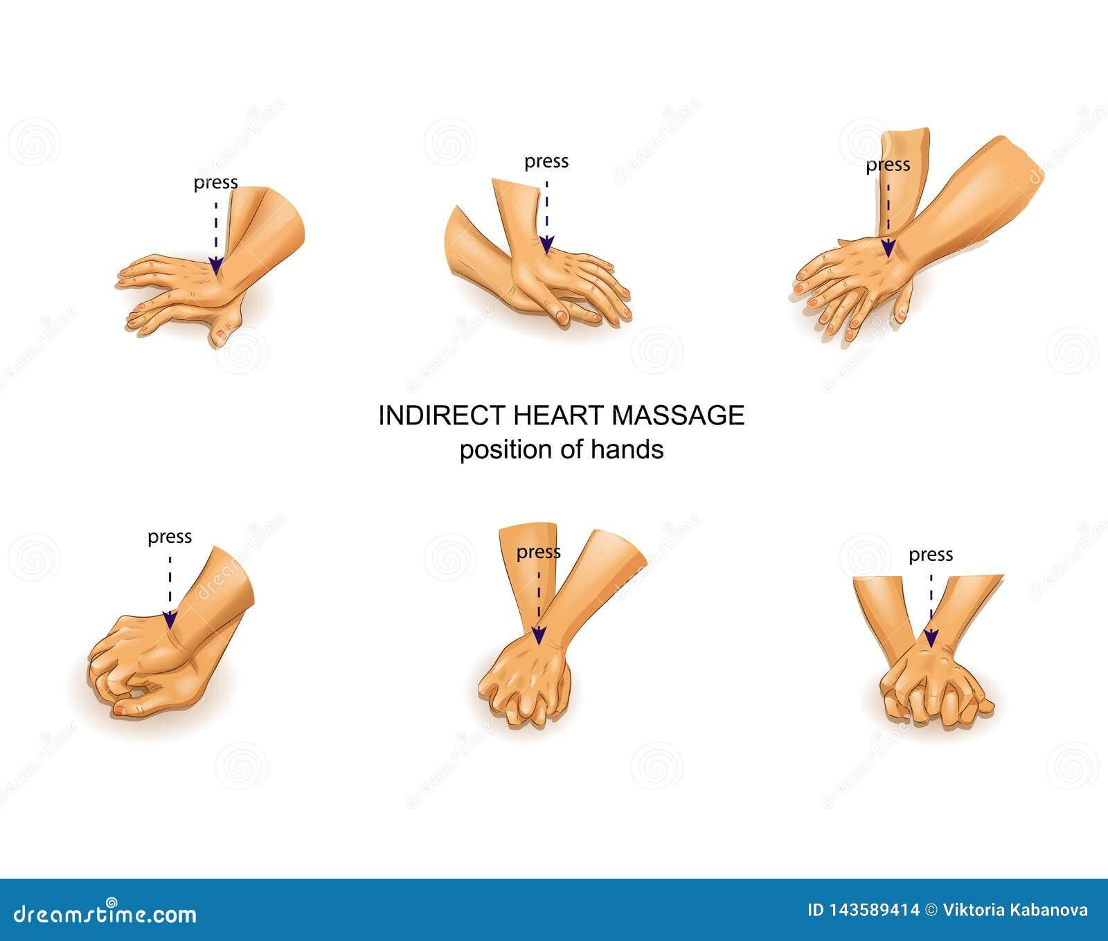 Position av doktorns händer i indirekt hjärtamassage
