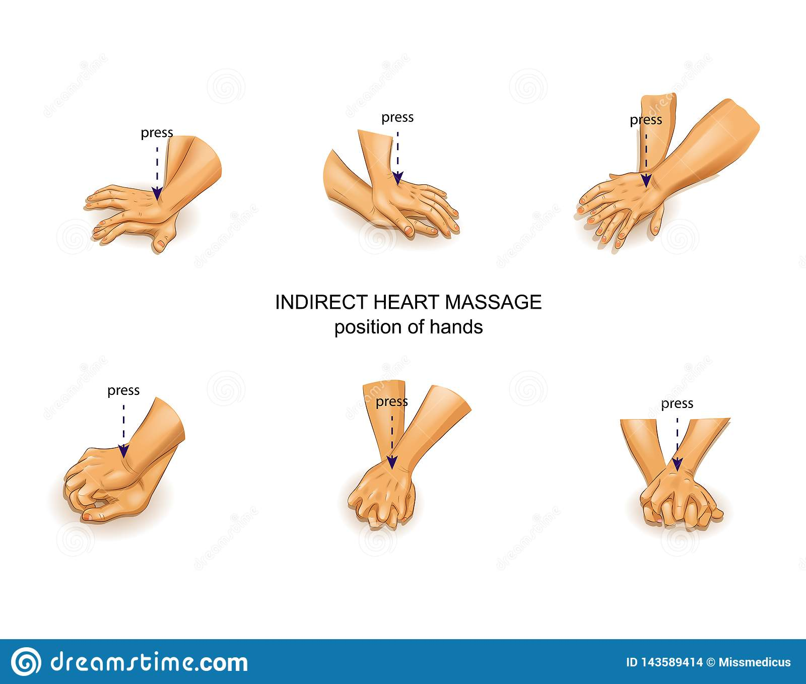 Position der Hände des Doktors in der indirekten Herzmassage
