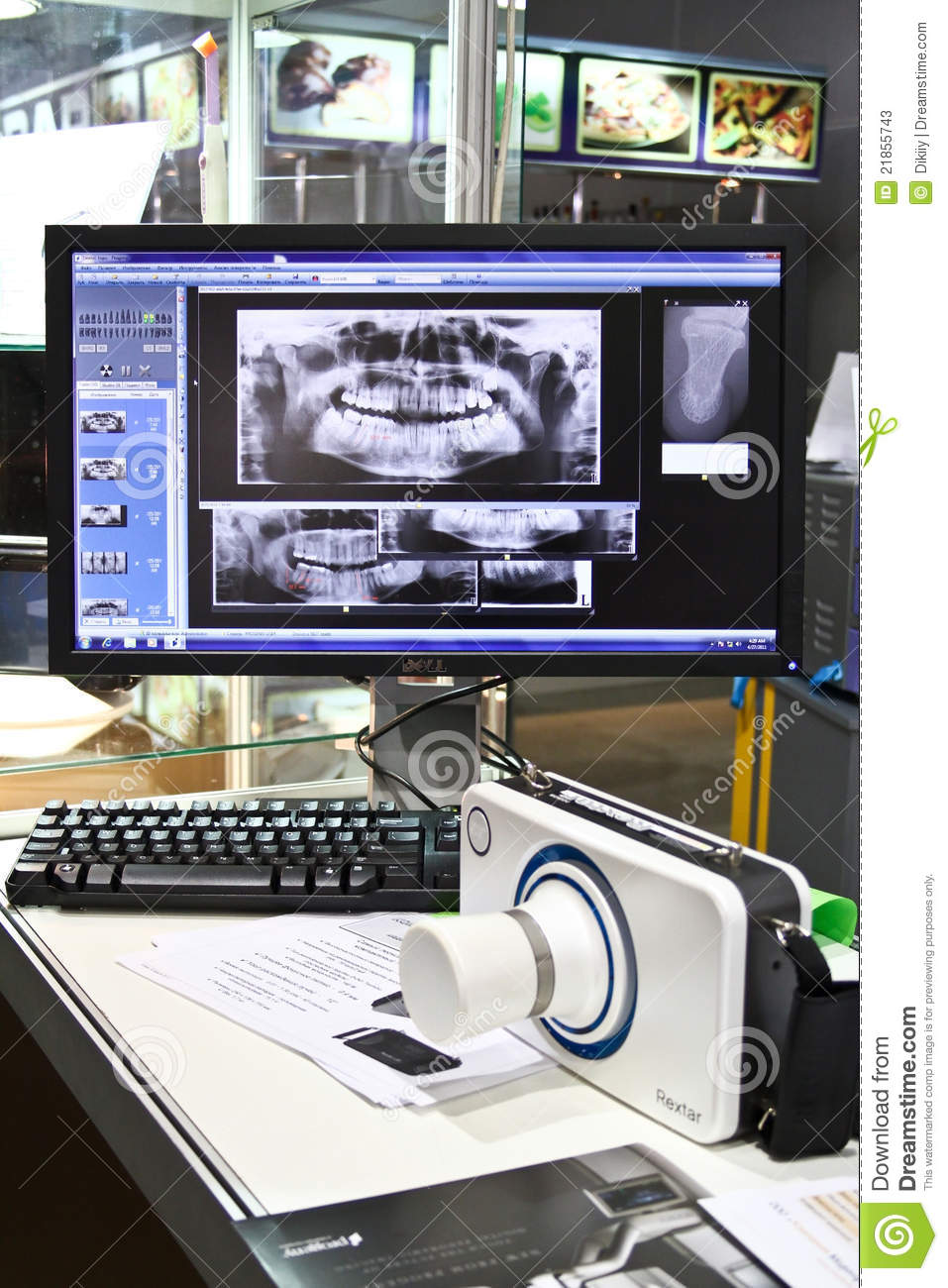 Poskom Portable X Ray Machine And Dental Images Editorial