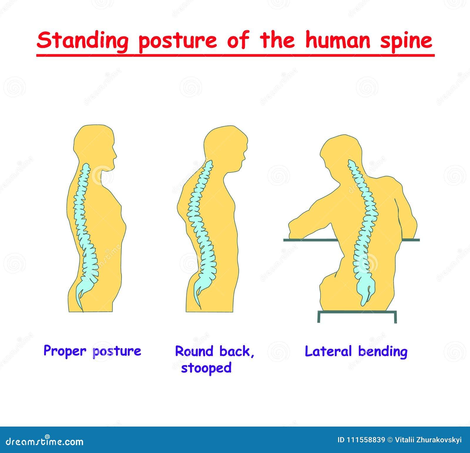Postura Derecha De La Espina Dorsal Humana Defectos De La Espina ...