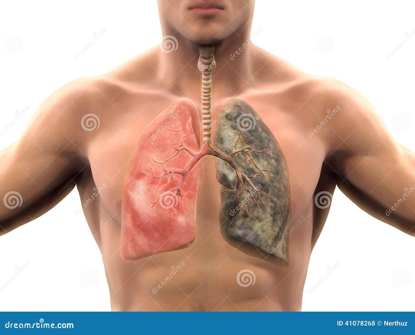 Le moyen de lallène du lapiaz de cesser de fumer