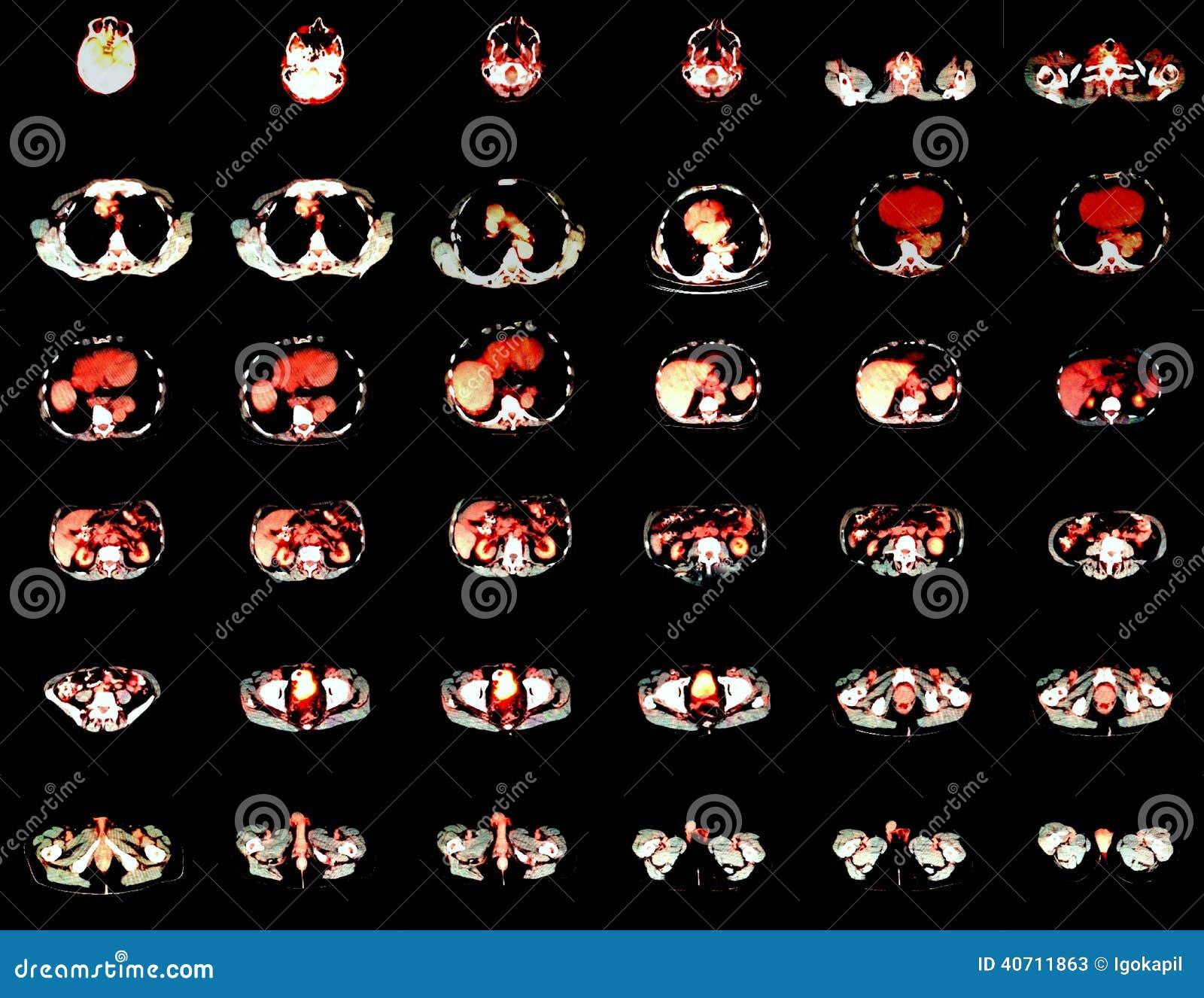 Pozytron emisi tomografia
