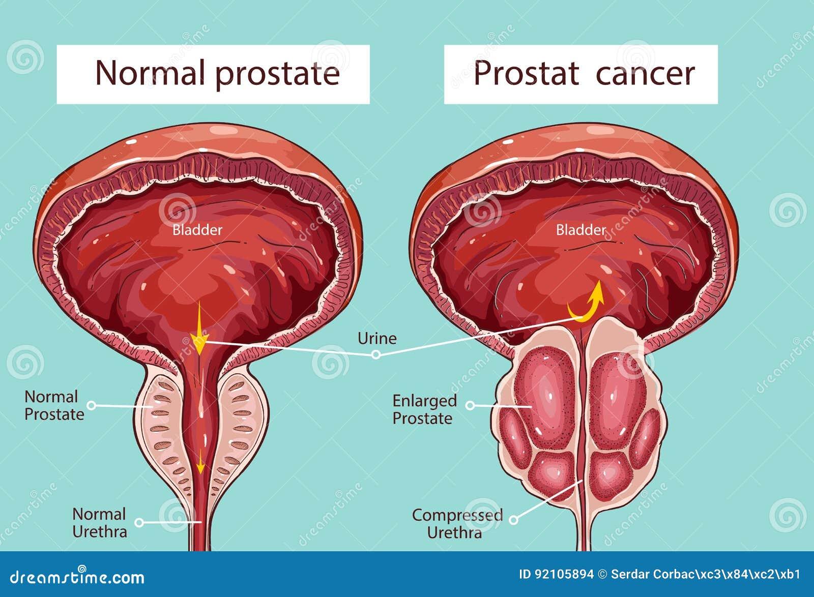 Anatómia Prostati Népi módszer a krónikus prosztatitis kezelésére