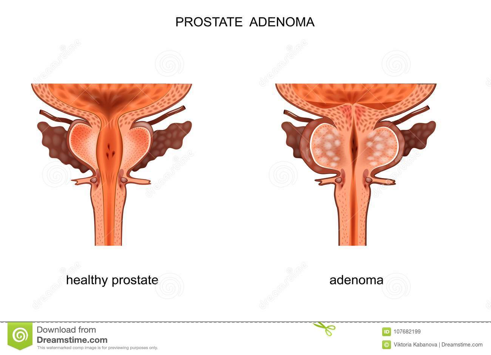 bph prostata)