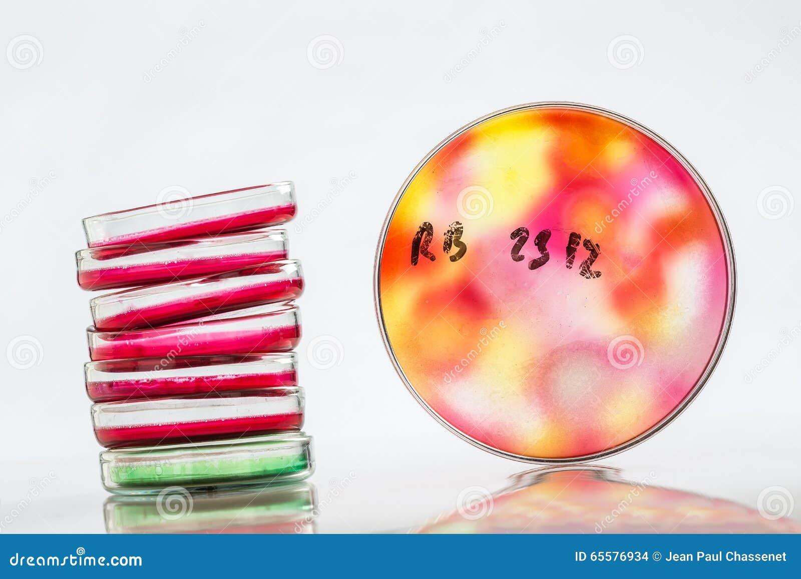 Prato de Petri, análise de sangue, tubo de ensaio, seringa