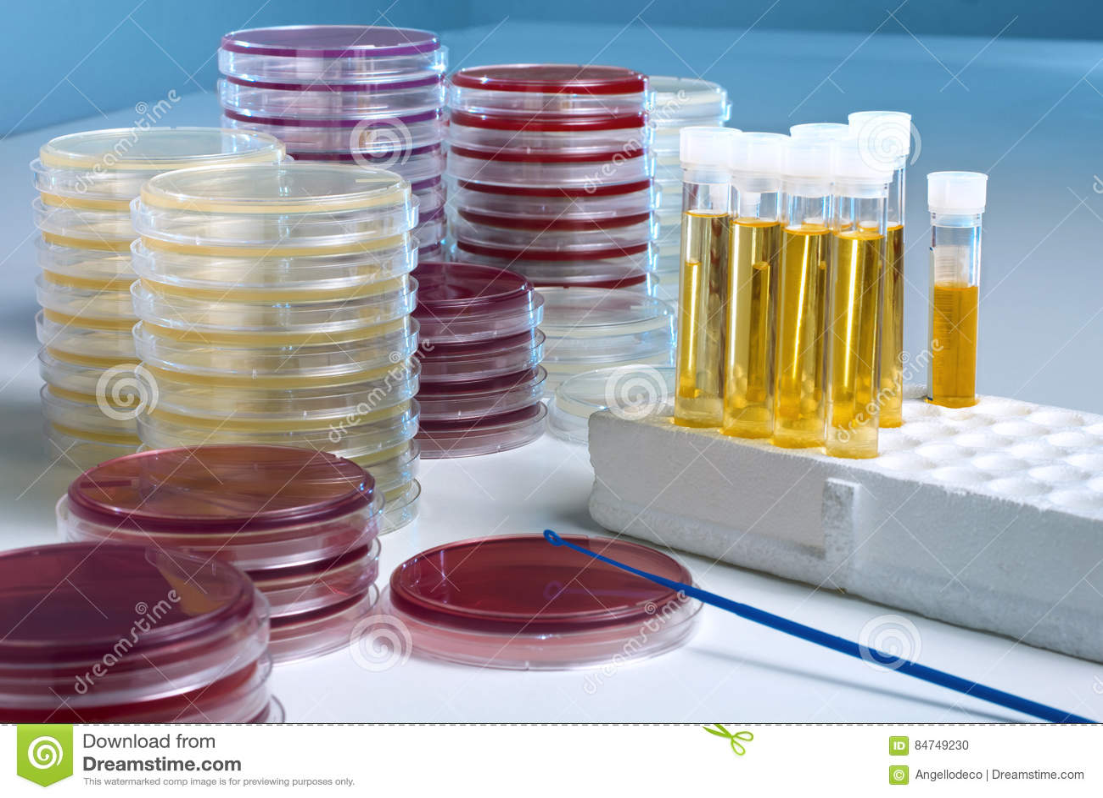 Exame cultura de urina