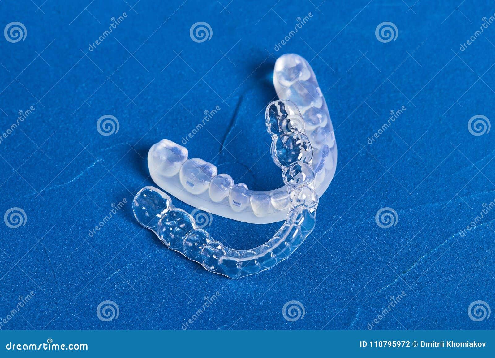 Pre-orthodontic dental trainer alignment appliance