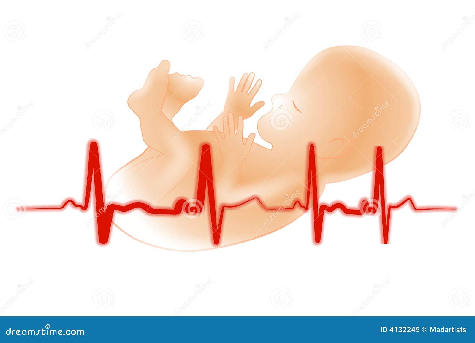 Premature Baby Fetus Electrocardiogram Royalty Free Stock ...