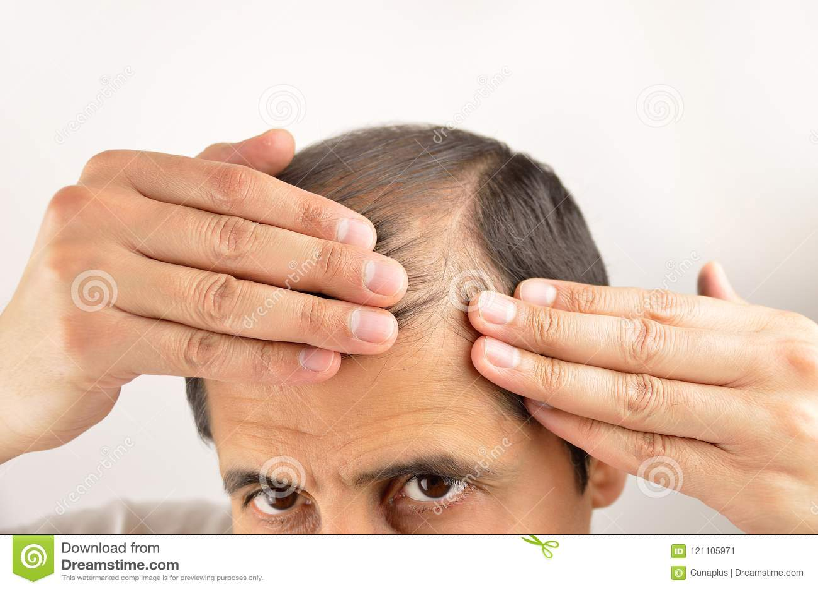 Preocupado por sua queda de cabelo