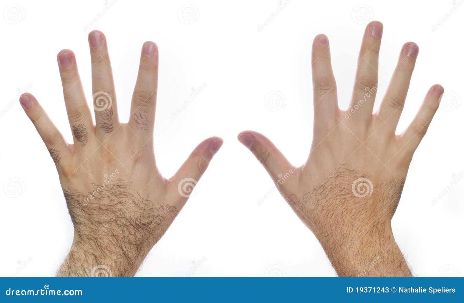 Preparação do laser do cabelo da mão