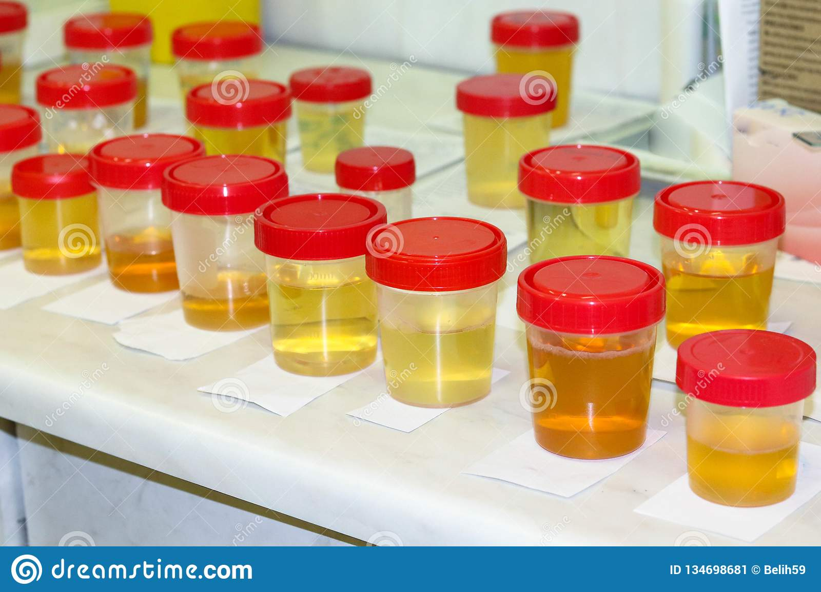 Preparation of urine samples in the laboratory in the hospital for the study. Special test strips for urine examination