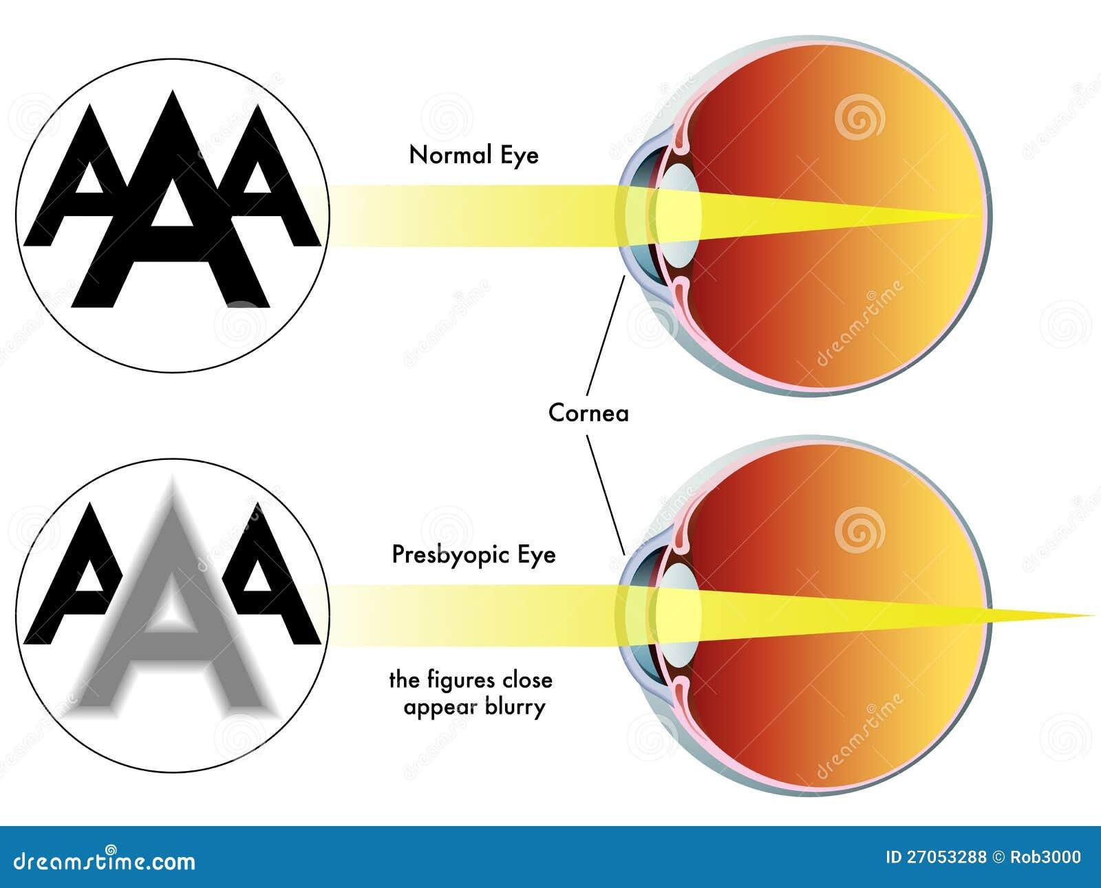 f6e94eb2b Presbiopía ilustración del vector. Ilustración de óptico - 27053288
