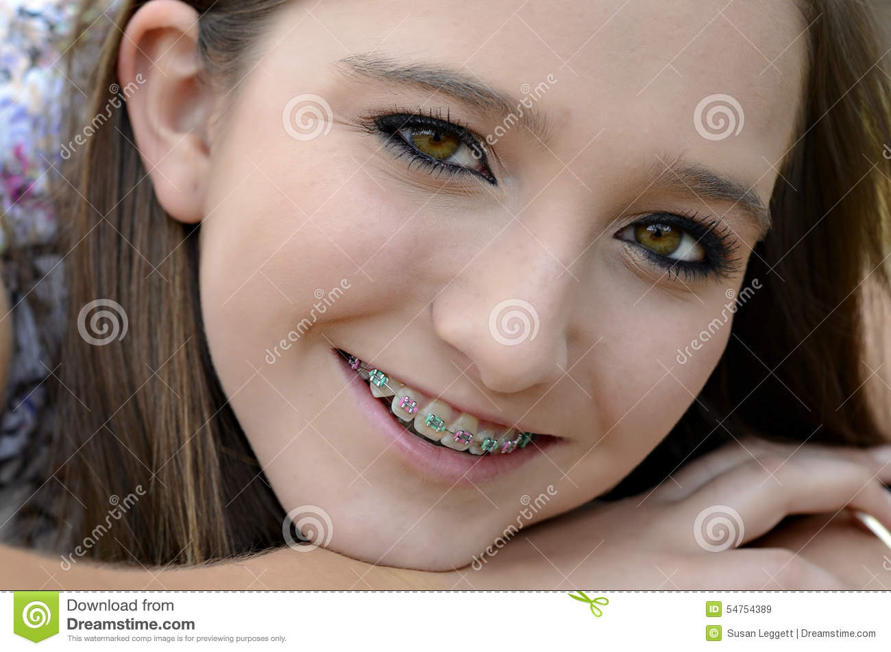 pretty faces with braces nude