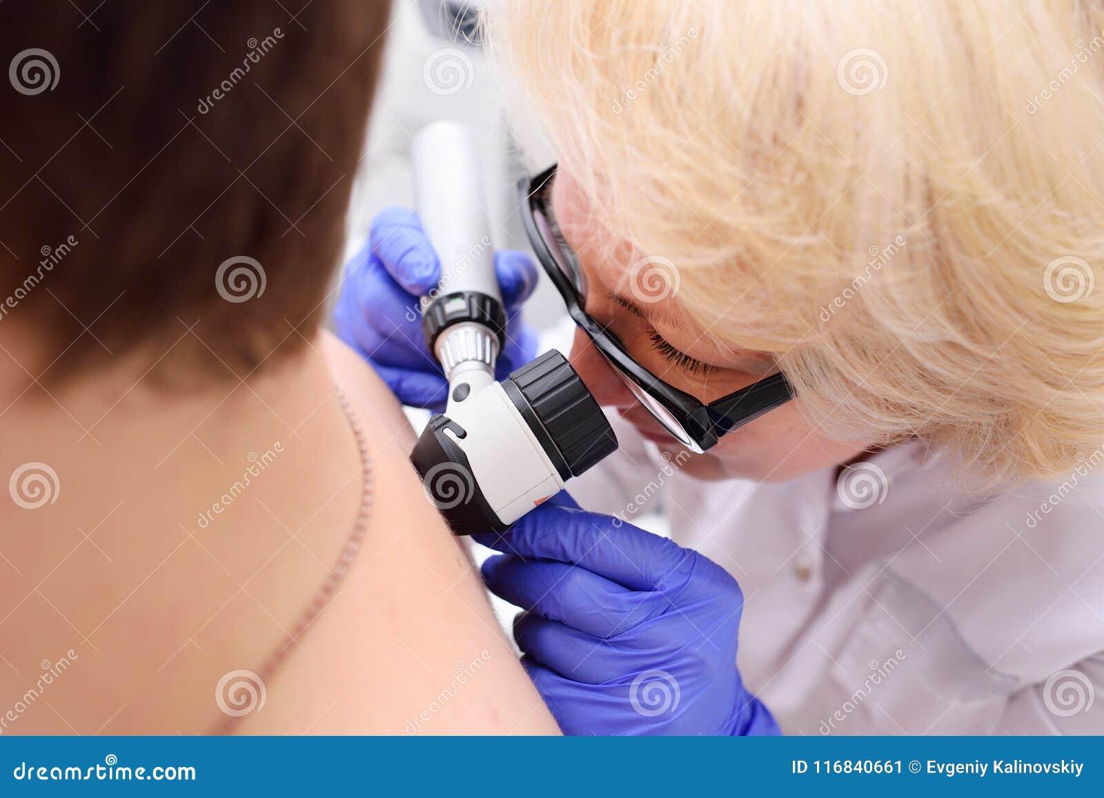 Prevención del cáncer del melanoma y de piel
