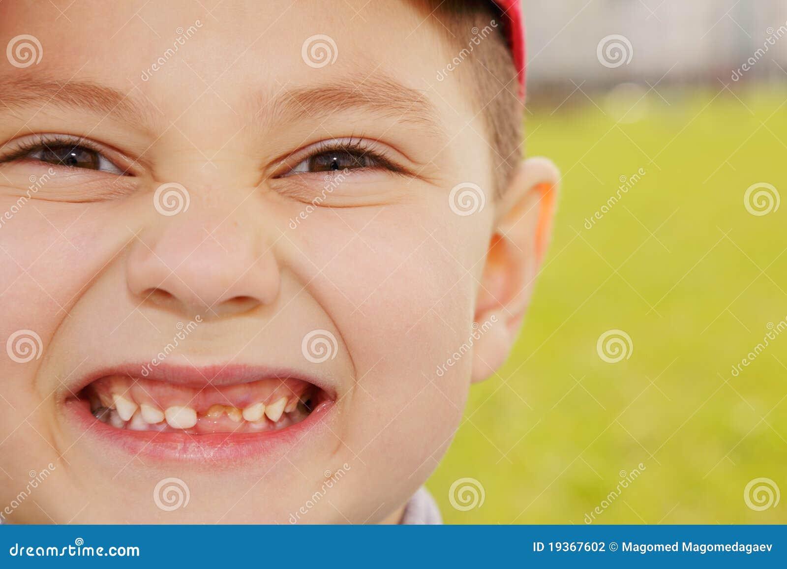 Primeiro dente fora