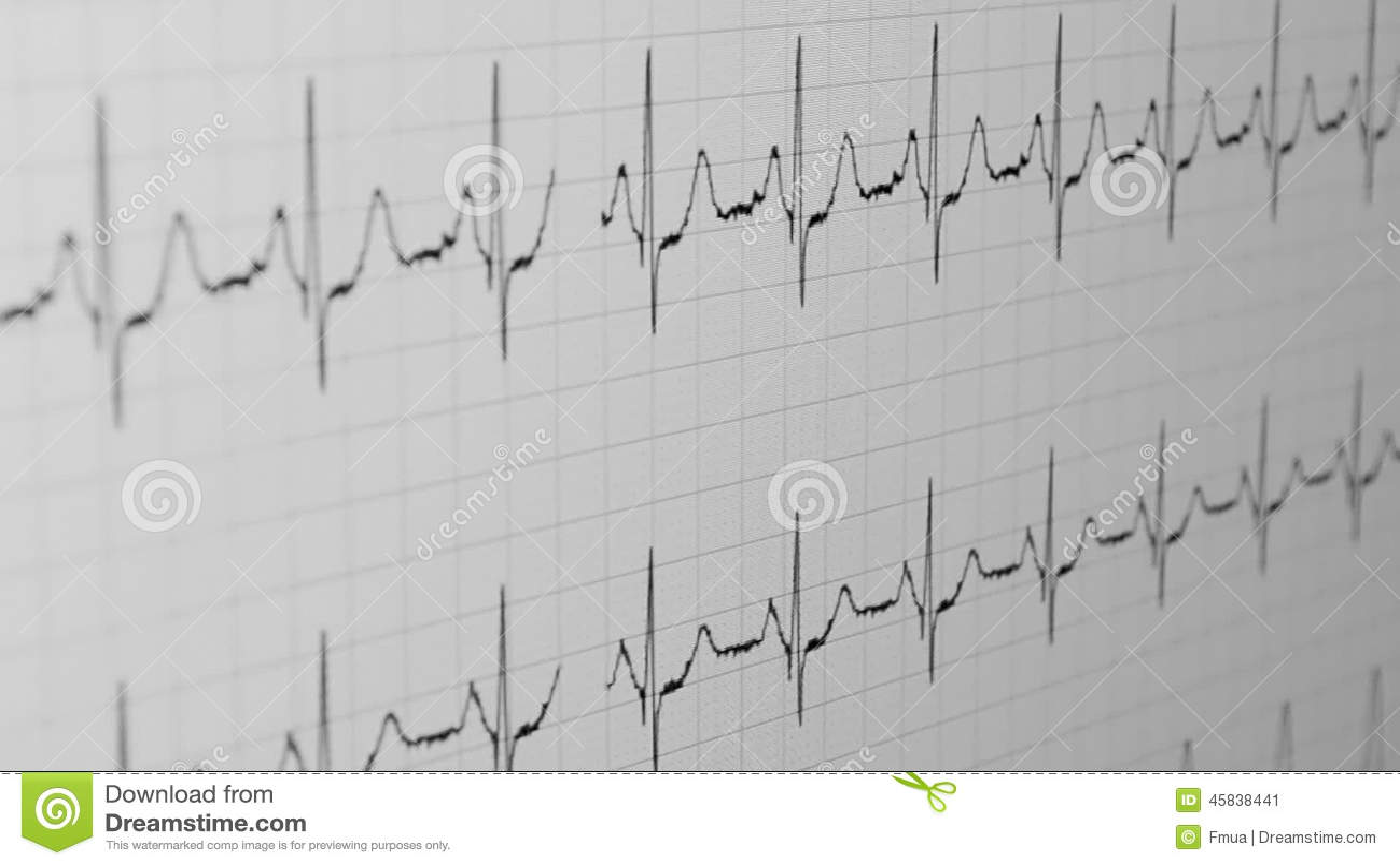 Primer Cardiovascular Del Diagrama Pulso Médico Metraje Stock– 7 ...