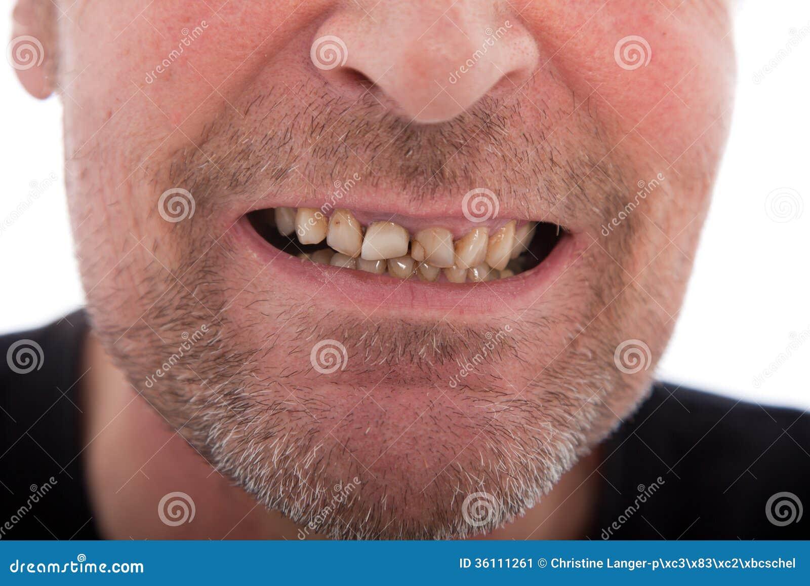 Primer de la boca de un hombre que muestra los dientes