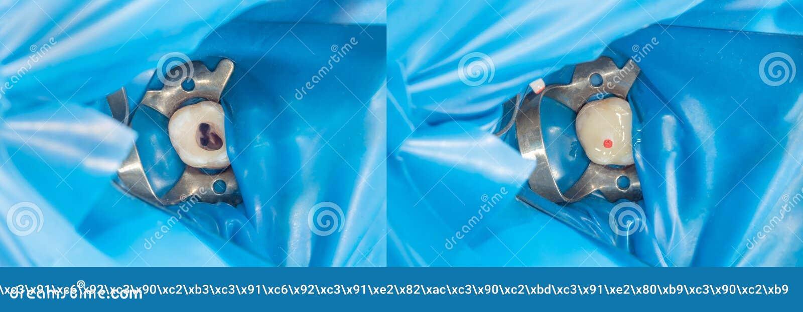 Primer humano de los dientes durante la restauración del relleno El concepto